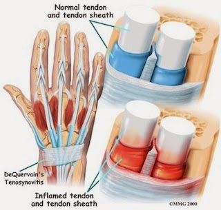 tendonitis_wrists-ergonomics
